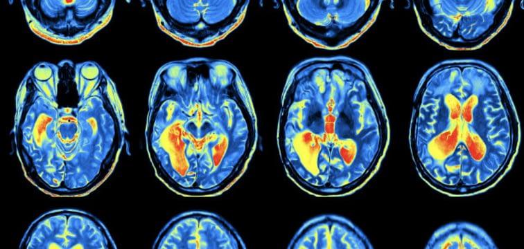 visuele weergave van een fMRI scan